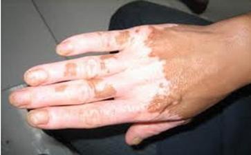 手指白癜风如何治疗