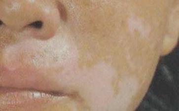 面部的鼻子周围有白癜风怎么治