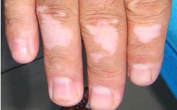 抽烟对白癜风患者的危害